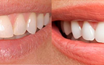 Carillas dentales: Perfeccioná tu sonrisa