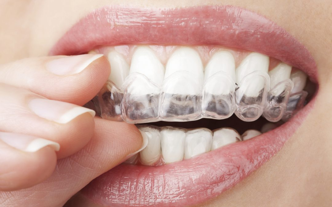 Llegó la alternativa transparente, removible y cómoda a los brackets